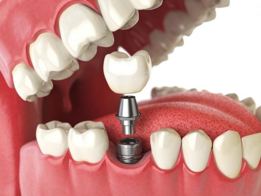 Стоматологические услуги: Протезирование зубов в ДанСи, стоматология, ООО