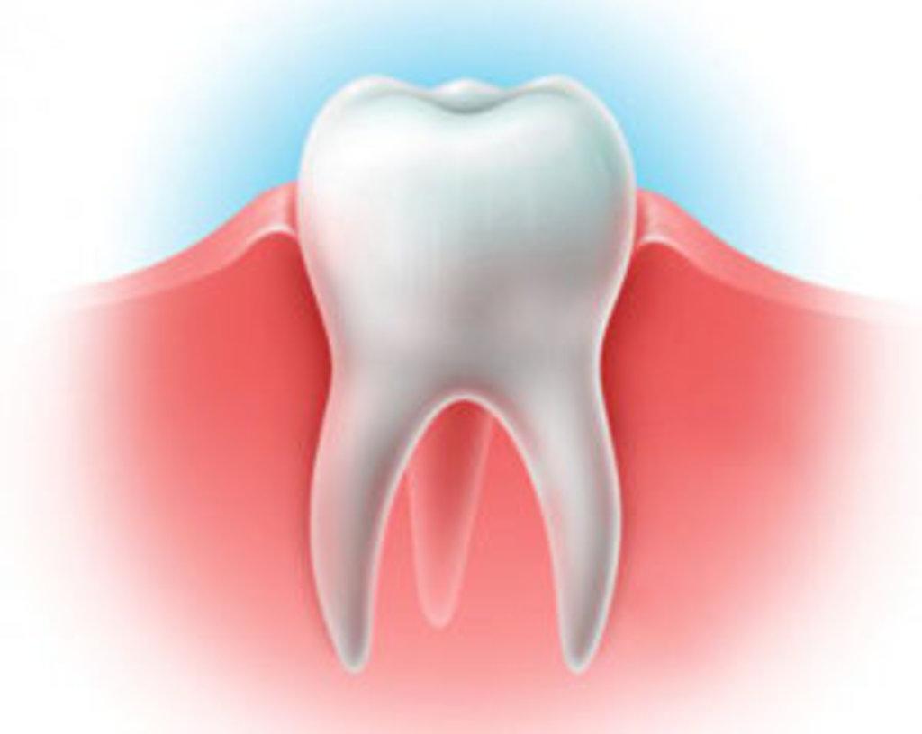 Стоматологические услуги: Лечение воспаления десен в Эстетика, центр стоматологии, ООО