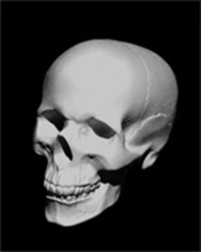 Гипсы: Череп анатомический, гипс в Шедевр, художественный салон