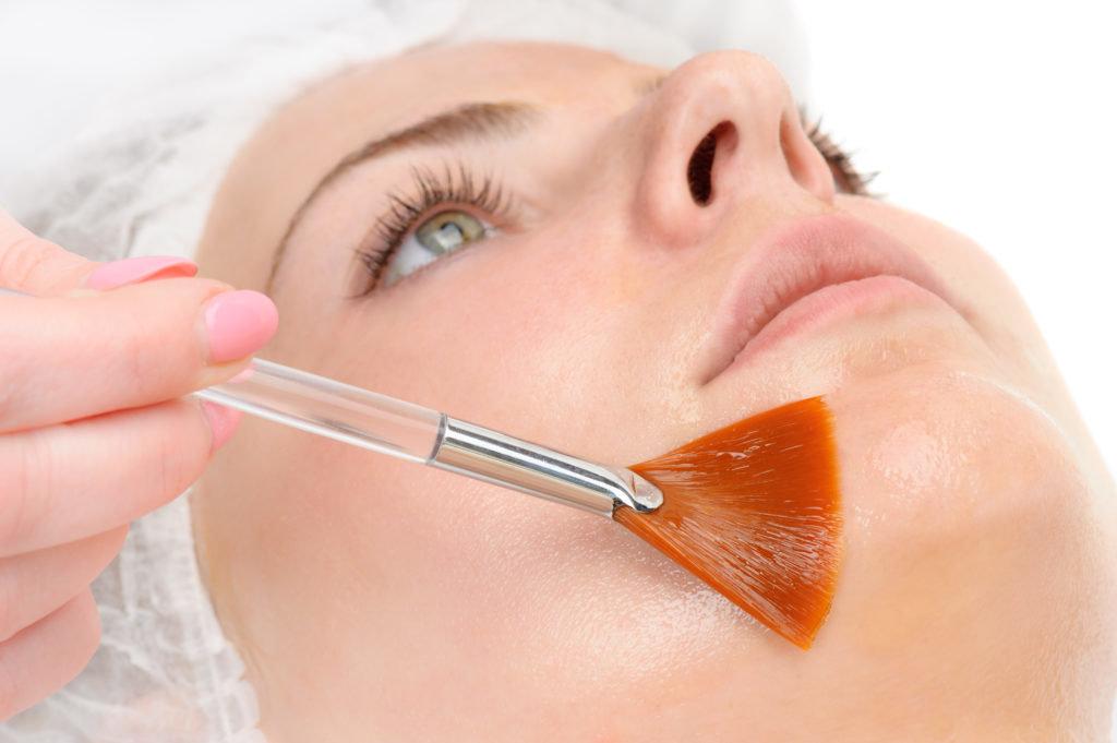 Косметологические услуги: Химический пилинг в Косметический кабинет