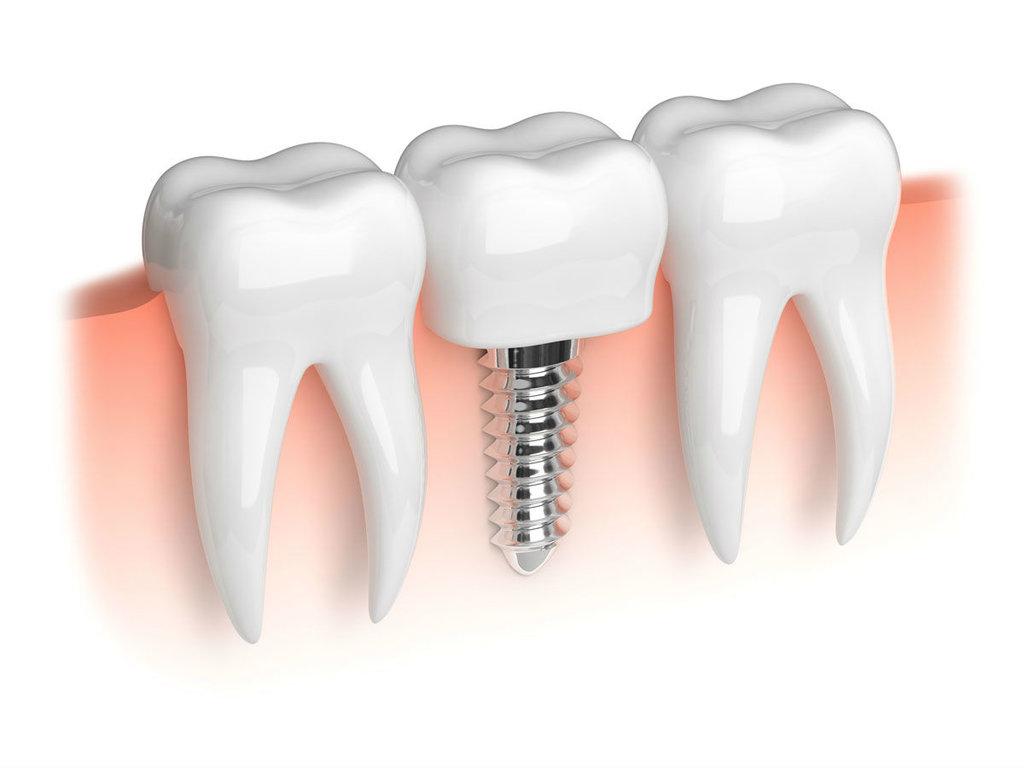Имплантация зубов в Эстетика, центр стоматологии, ООО