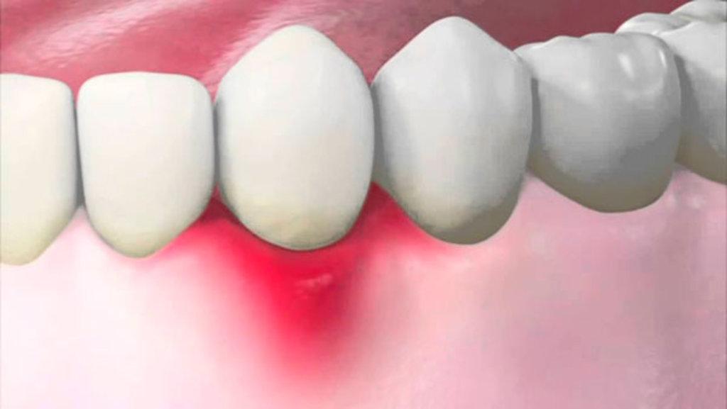 Стоматологические услуги: Воспаление десен в Эстетика, центр стоматологии, ООО