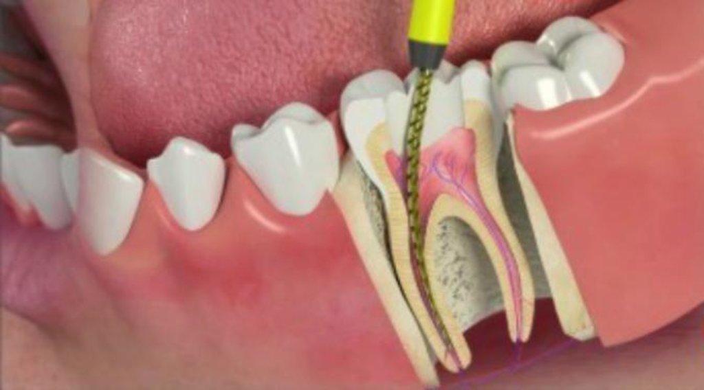Стоматологические услуги: Лечение пульпита в Улыбка, ООО Ной