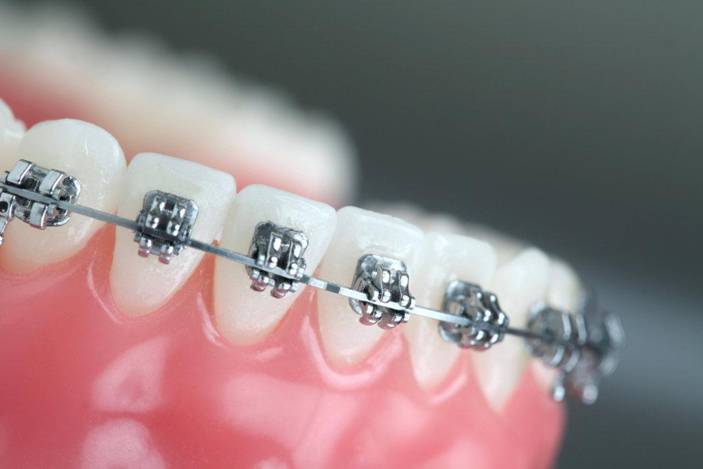 Ортодонтия в Эстетика, центр стоматологии, ООО