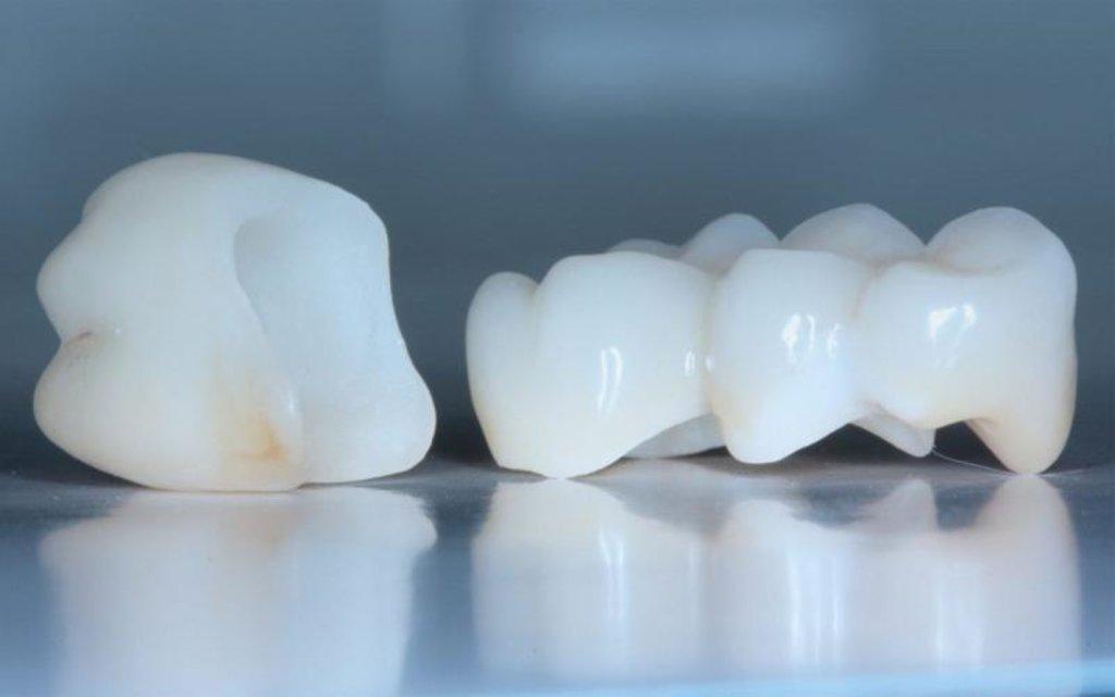 Стоматологические услуги: Временная коронка в ДанСи, стоматология, ООО
