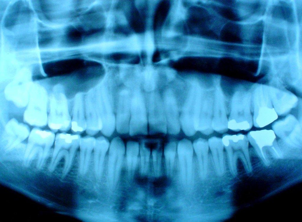 Рентген зубов в Эстетика, центр стоматологии, ООО