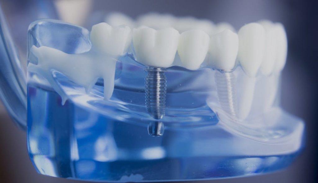 Протезирование зубов в Эстетика, центр стоматологии, ООО